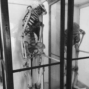 Narrenturm . . . #narrenturm #wien #vienna #medicine #museum #dark #science #skull #oddities #macabre #traveling Narrenturm