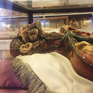 Medical wax models #vienna #austria #medical #wax #museum #morbid #anatomy #art #sculpture #darktourism Josephinum