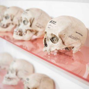 Im 19. Jahrhundert wurden heftige Diskussionen um die Klassifizierung der Spezies Mensch geführt. Hierfür wurden auch menschliche...